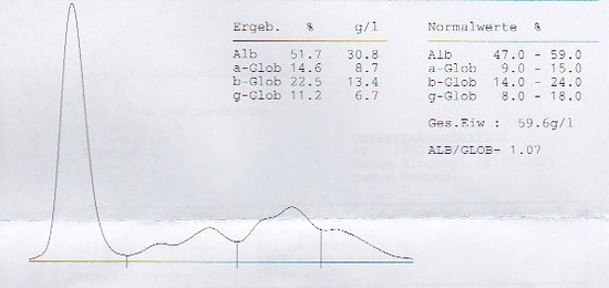 serumelektrophorese 18 02 13