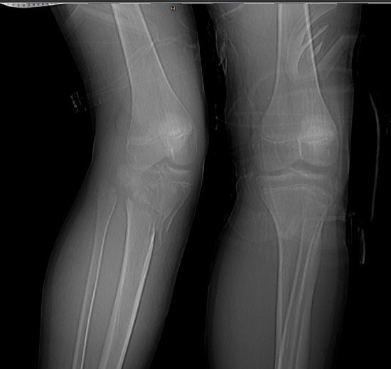 Tibiakopffraktur und alpinestarslogo - Röntgen