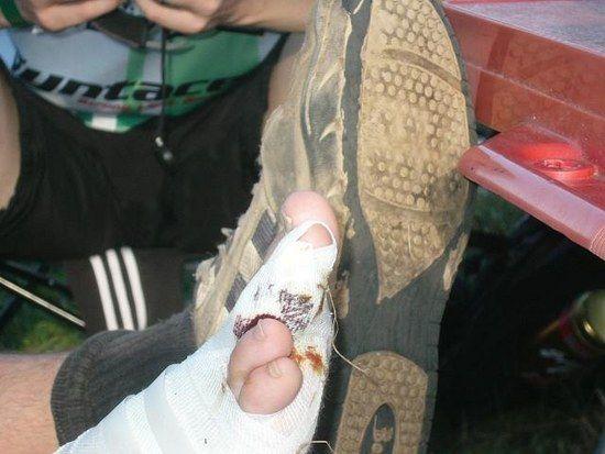 Nagel abgerissen und 3 Zehen gebrochen