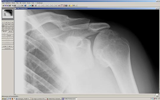 1 Falsche behandelte Schulterverletzung, bis zur Prothese