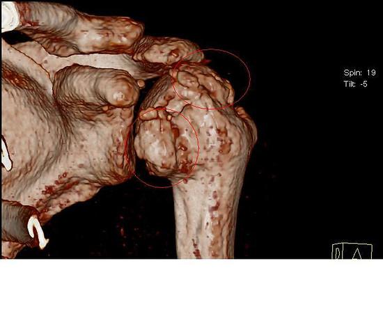 2 Falsche behandelte Schulterverletzung, bis zur Prothese