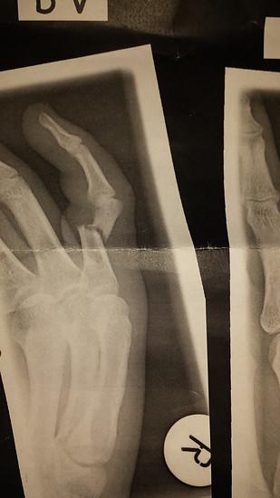 Kleinerfinger (5.Finger) Rechts. Glatter durchbruch.